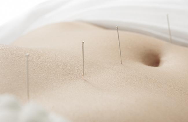 adelgazar con acupuntura avila